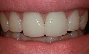 corrected chipped tooth