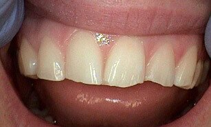 chipped tooth