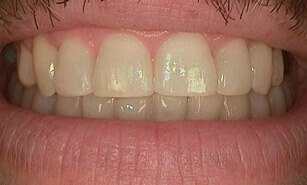 corrected misaligned teeth