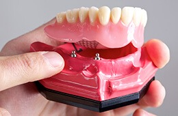 bottom dental implant