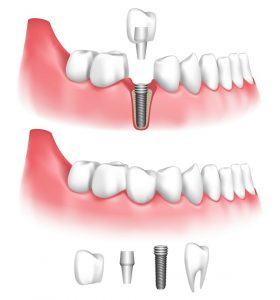 Dental implants in Concord restore oral function and looks after tooth loss. Read how these innovative prosthetics work at Generations Dental Care.
