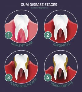 Are you unsure of what to do about your bleeding gums? See your dentist in Concord to treat and prevent worsening gum disease.