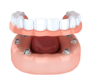 With dental implants in Concord from Generations Dental Care, you can restore your smile to its former glory.