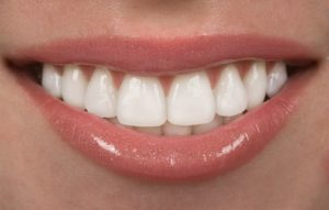 Learn How Propel Orthodontics Makes Invisalign In Concord Faster